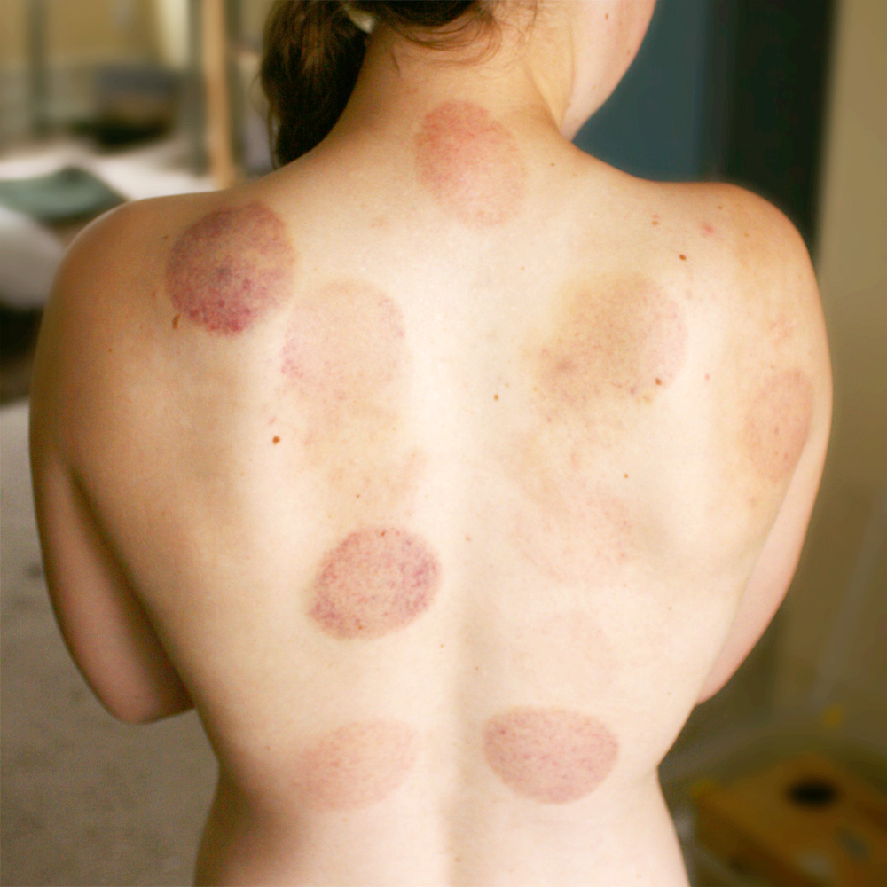 Cupping - Chinese healing method