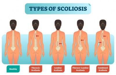 Type of scoliosis